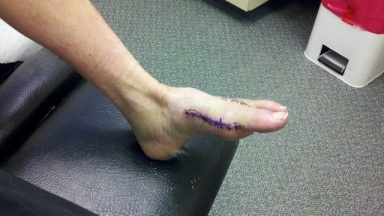 foot-with-incision.jpg